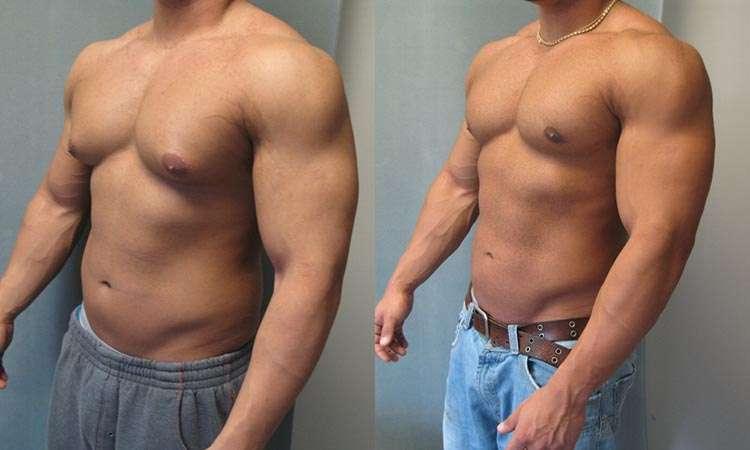 método para eliminar ginecomastia sem cirurgia